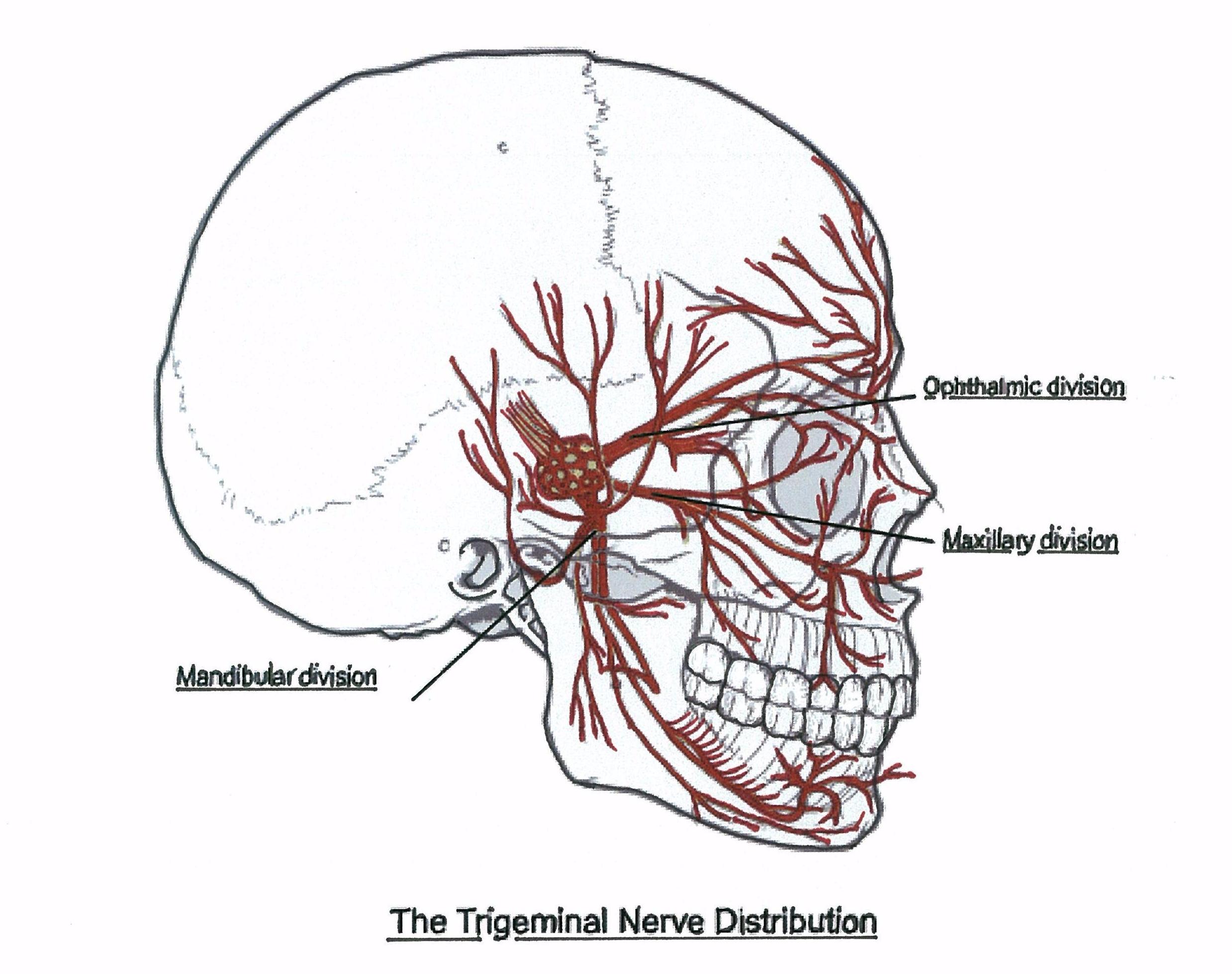 What Is Trigeminal Neuropathy